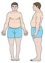 The Endomorph Body Type